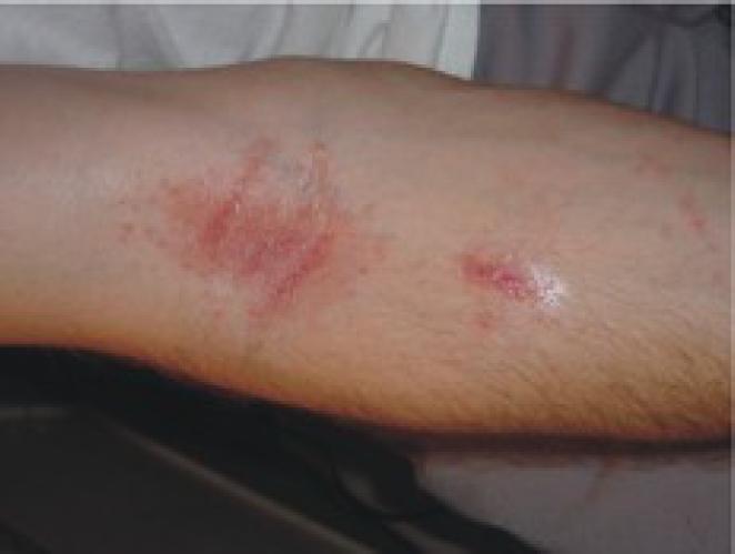 rash caused by sperm